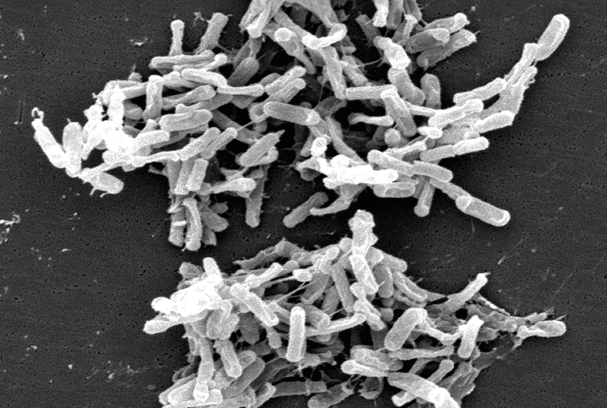 Clostridium_difficile_01