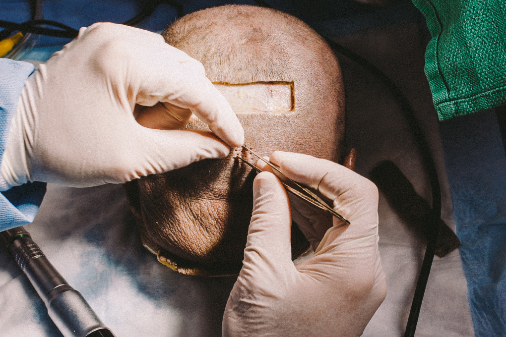 Sultan Of Scalp One Doctor Peels Back The Skin To Find A Better