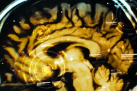 Deus Ex Brain