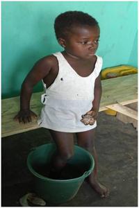 Child_foot_in_bucket_medium