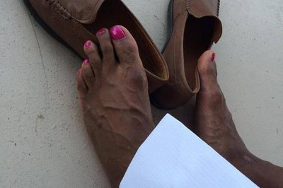 DeAngelo Williams' toes look a little different