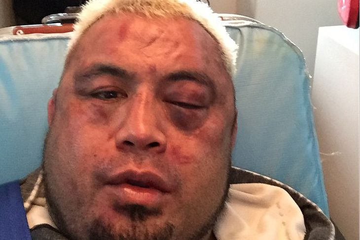 Mark Hunt posts photo of smashed face from UFC Fight Night 65 ...