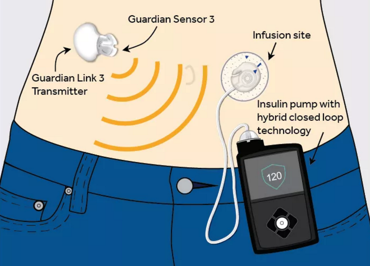 "We finally have an ""artificial pancreas"" for diabetes  But it's a"
